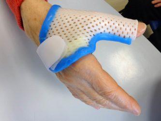 orthèse de pouce attelle arthrose rhizarthrose inflammation entorse